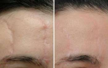 Удаление и лечение шрамов при помощи азота